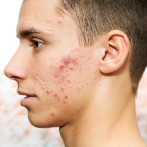 ce este acneea
